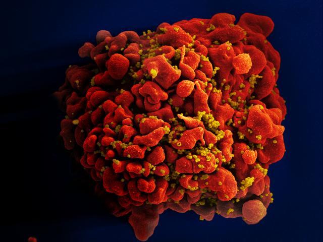 Электронная микрография ВИЧ-инфицированного T-лимфоцита H9. Фото: NIAID