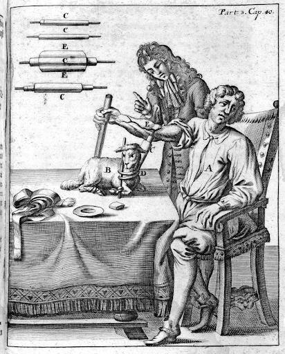 Жан Батист Дени переливает пациенту овечью кровь.