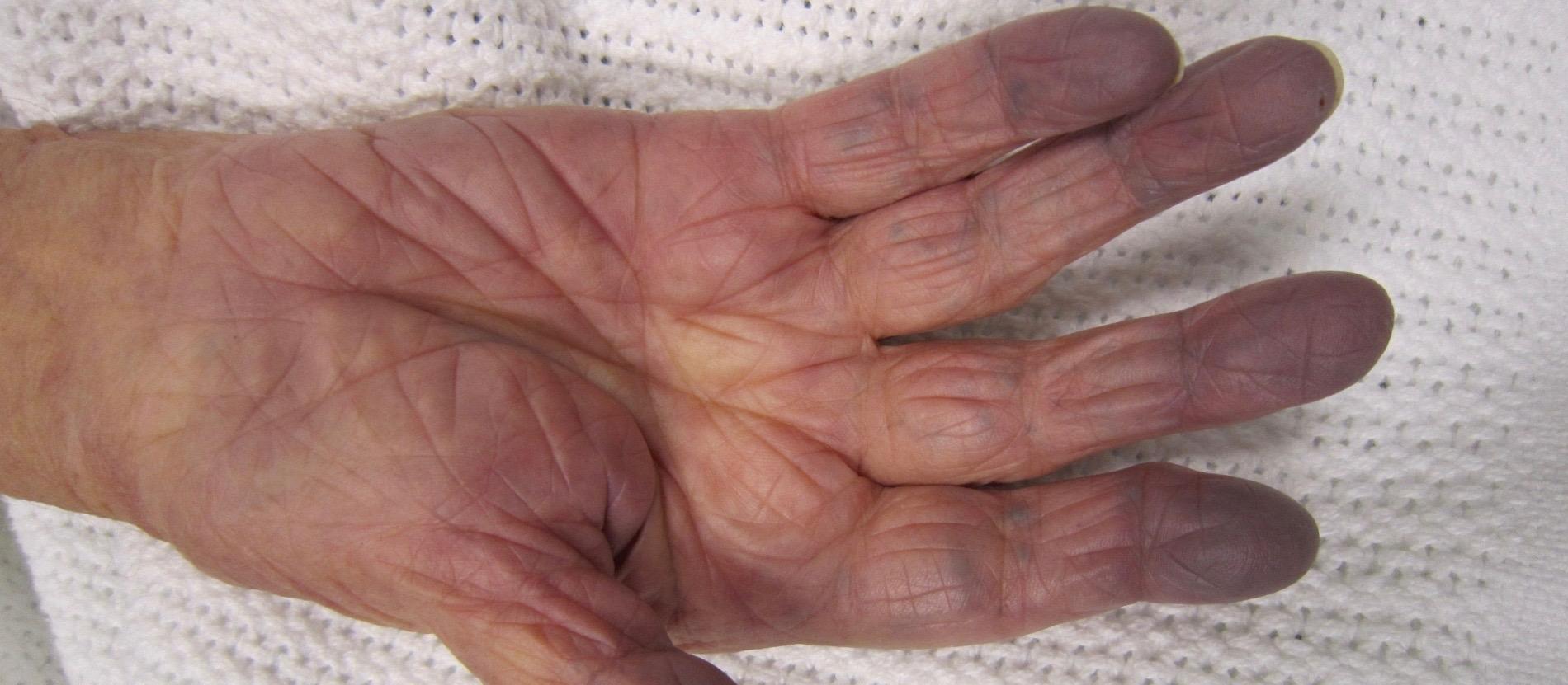 Из-за зелёной крови пальцы могут посинеть.