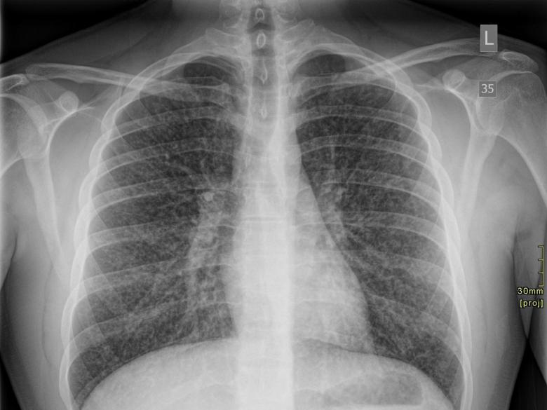 Этот рентгеновский снимок грудной клетки 17-летнего юноши из Онтарио был сделан спустя два дня после того, как его госпитализировали сболезнью лёгких, связанной свейпингом.  «Журнал Канадской медицинской ассоциации» (Canadian Medical Association Journal).