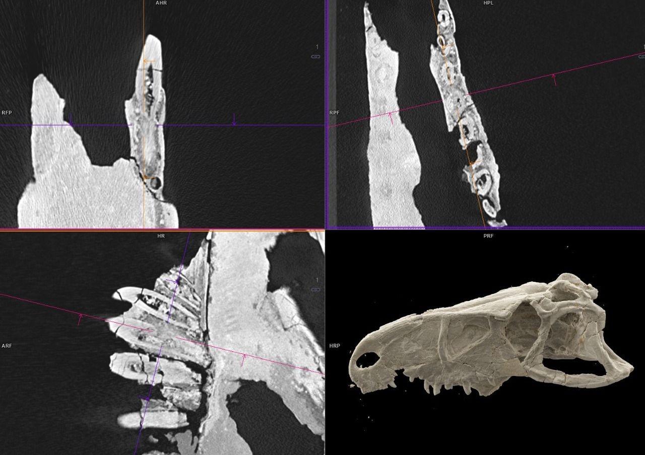 Томограммы зубов вразных проекциях после мультиэнергетического сканирования (верхние, левое нижнее изображения), реконструкция внутренней поверхности черепа (правое нижнее изображение). Автор: Виктор Гомболевский, Центр диагностики ителемедицины
