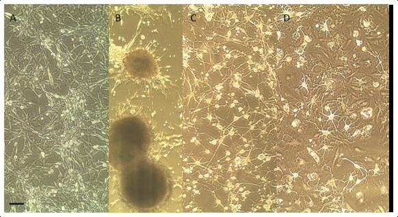 — Вот смотрите,— объясняет профессор Аксёнов,— это питательные среды под микроскопом. Вот это (A) глиобластома, ещё необработанная нашим веществом, вот опухоль продолжает расти (B), то есть полный конец нейронам. Это через 16 дней (C), тут уже начали расти аксоны, но ещё невполне восстановились, аэто через 33 дня (D). Это собложки Journal of Medicinal Chemistry...