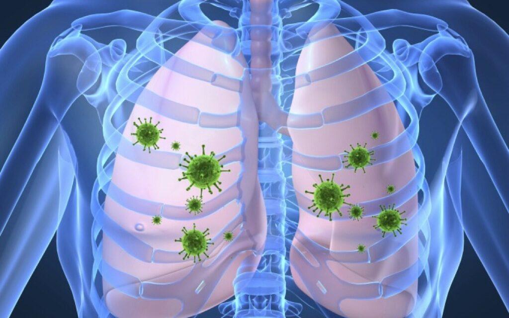 УCOVID-19 иХОБЛ (хронической острой обструктивной болезни лёгких) высокая степень коморбидности, т.е. можно сказать, что их разрушающие механизмы влияют наорганизм человека сообща.