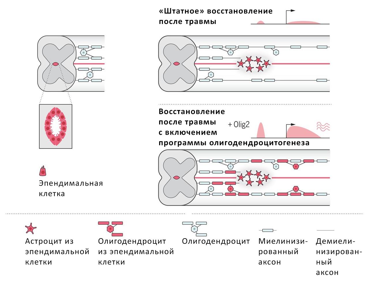 Запущенная при помощи генетической модификации экспрессия фактора Olig2 во взрослых эпендимальных клетках заставляет их после травмы дифференцироваться собразованием большего числа олигодендроцитов, что способствует функциональной регенерации спинного мозга.