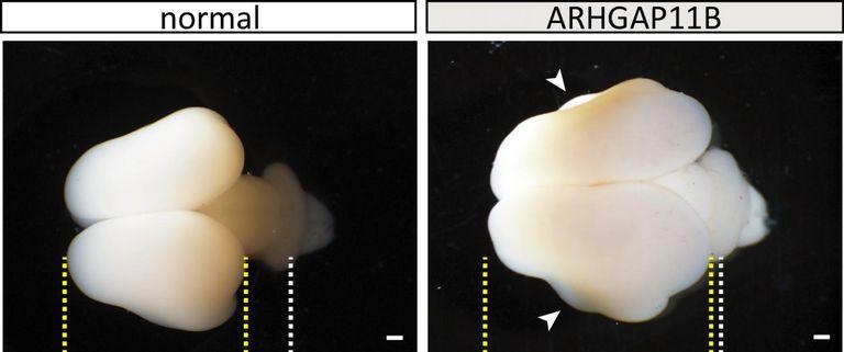 Сравнение головного мозга двух игрунок. Слева мозг обычной обезьянки, справа— сэкспрессией человеческого гена <i>ARHGAP11B</i>.