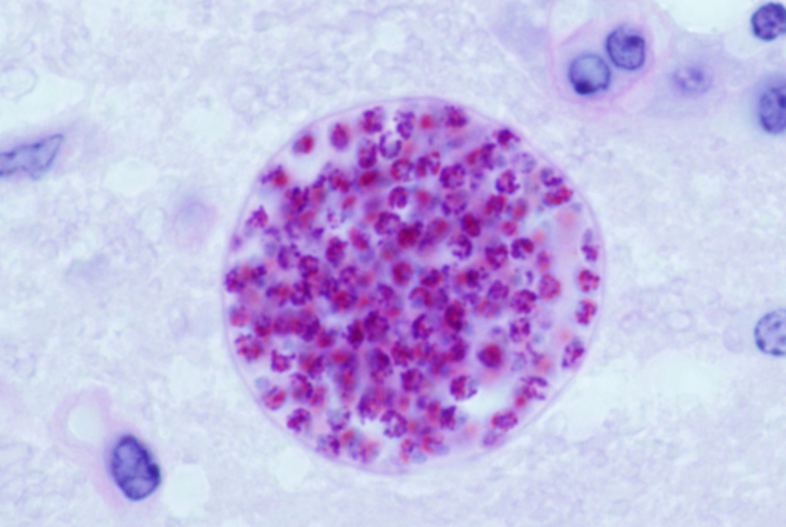 <i>Toxoplasma gondii</i>— паразиты, поражающие до 50% населения мира.