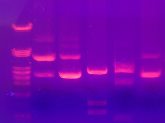 Protein separation by gel electrophoresis