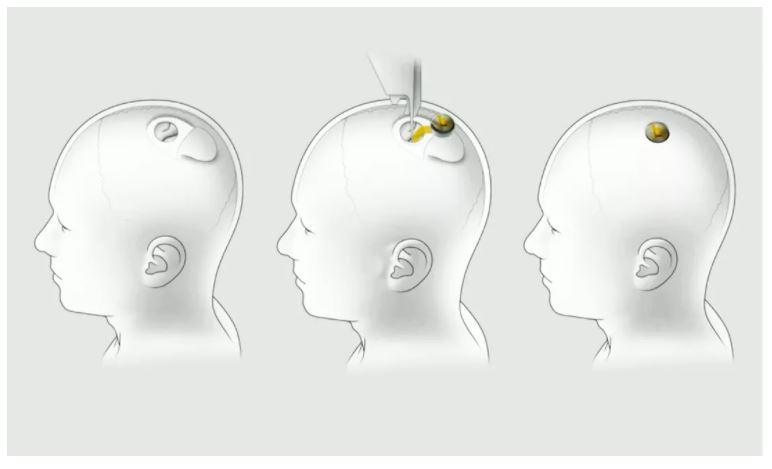 Мозговой чип