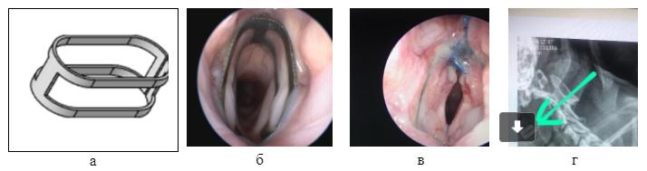 а) Рисунок имплантата; б) имплантат вгортани мопса непосредственно после установки; в) интеграция имплантата через девять дней после операции;  г) рентгеновский снимок пациента, стрелка указывает наимплантат.