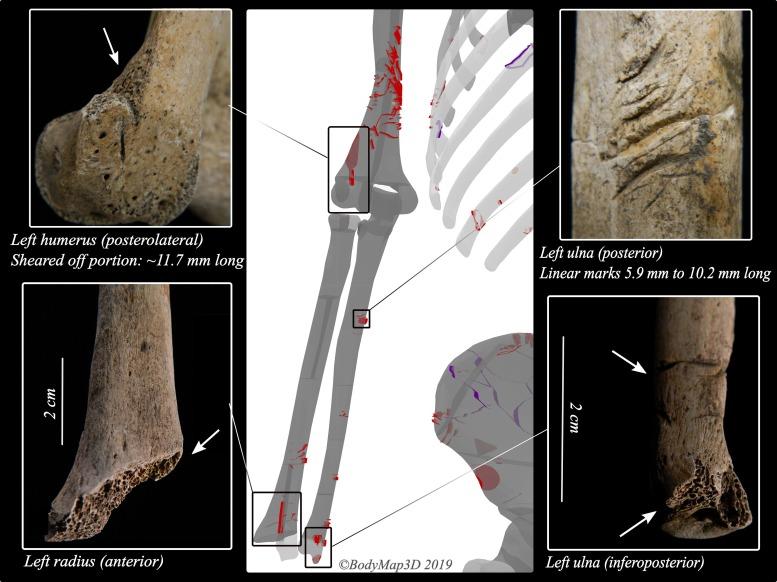 Часть левой руки со следами акульих зубов