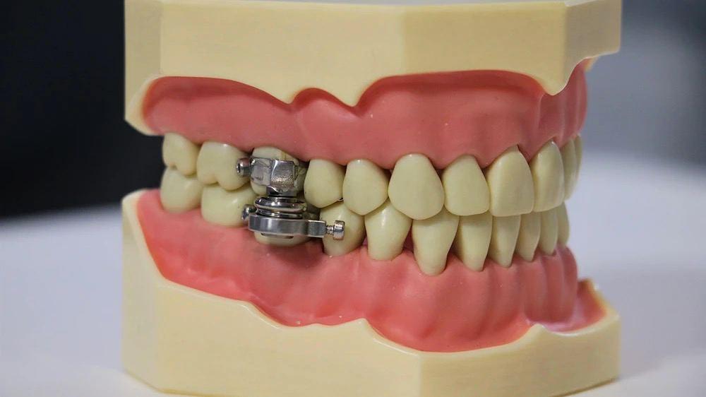 Так выглядит устройство, блокирующее челюсти.