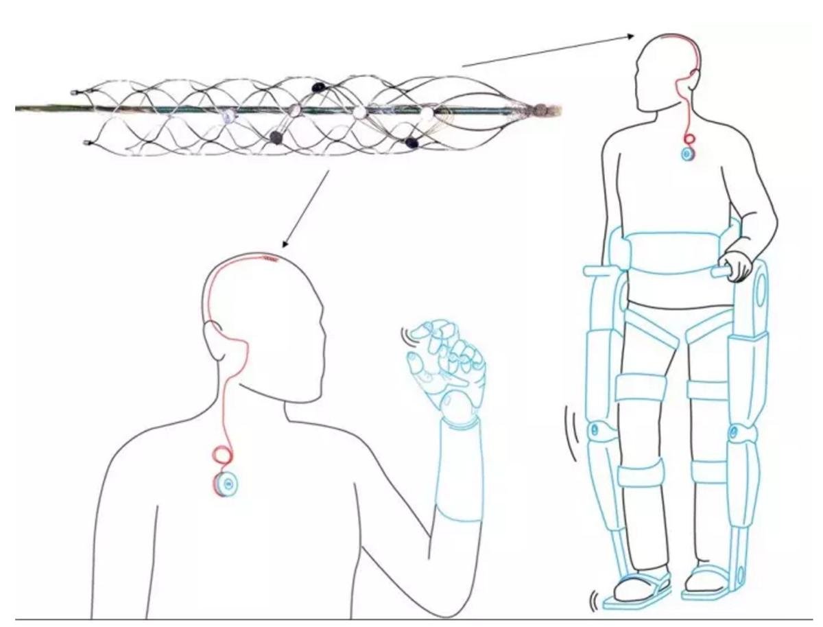 Схема использования стентрода винтерфейсе «мозг— компьютер» (изображение: Dr Thomas Oxley).